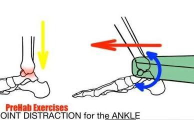改善脚踝活动度:弹力带关节牵引活动术