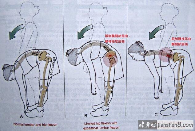 硬拉两个关键:髋关节活动度+腰椎稳定度。